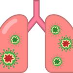 肺炎のイラスト画像