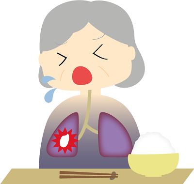 誤嚥性肺炎のイメージ画像