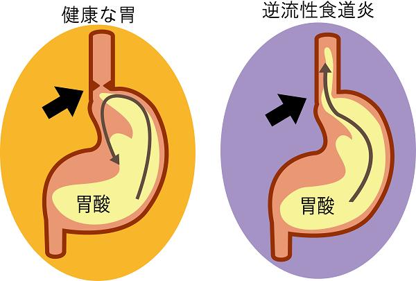 逆流性食道炎のイラスト画像
