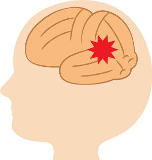 脳の障害 認知症のイメージ画像
