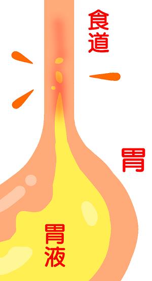 胃酸の逆流画像