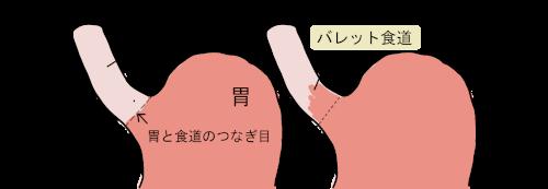 バレット食道の画像