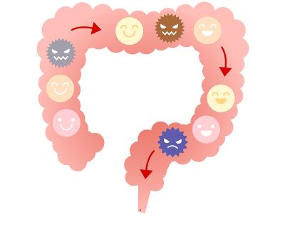 悪玉菌と善玉菌のイメージ画像