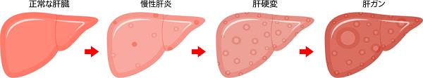 肝臓ガンの進行イメージ画像